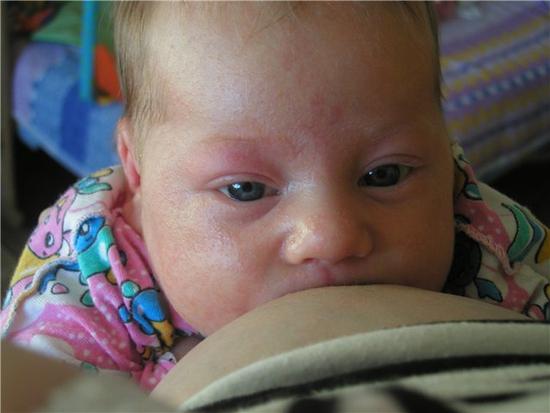 Как выглядит потница у ребенка и как ее лечить